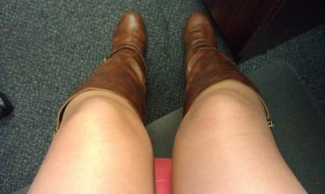 Amine allergy swollen knee joints